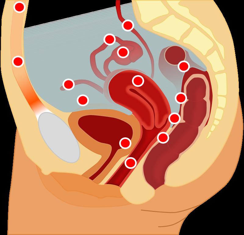 CBD Öl gegen Endometriose