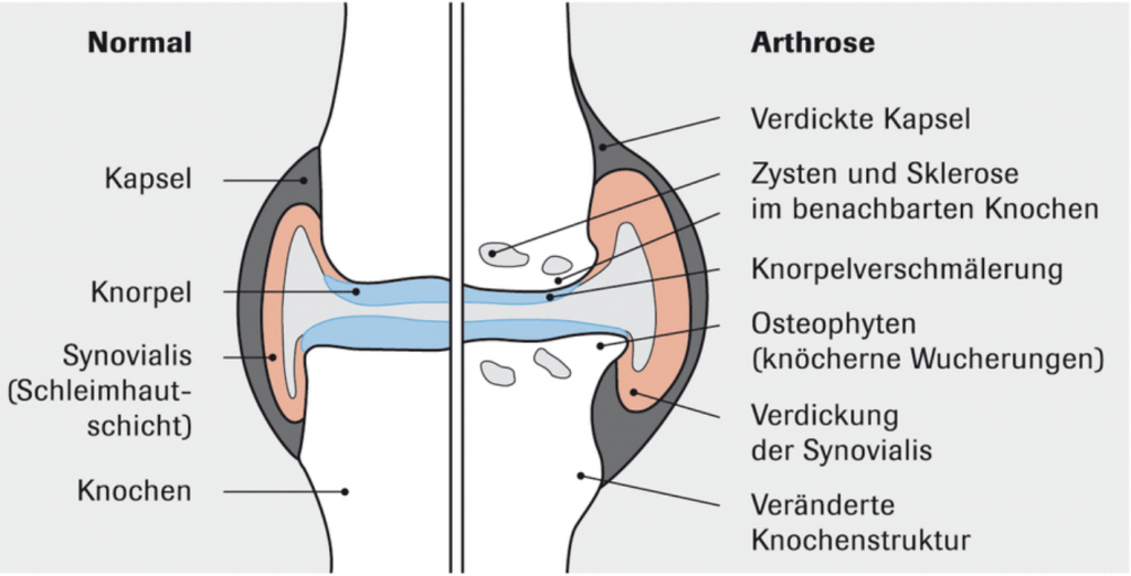 Normal vs Arthrose