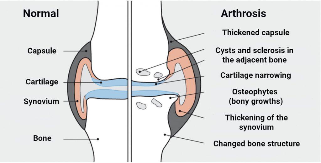Normal vs Arthrosis